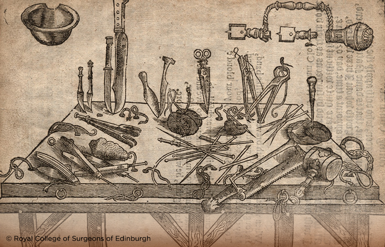 Illustration showing 16thc surgical instruments